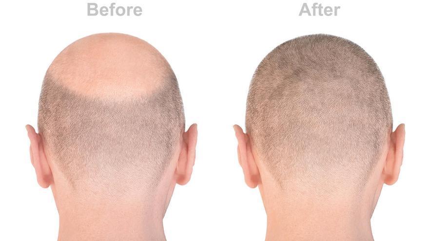 Recupera tu pelo sin necesidad de rasurar