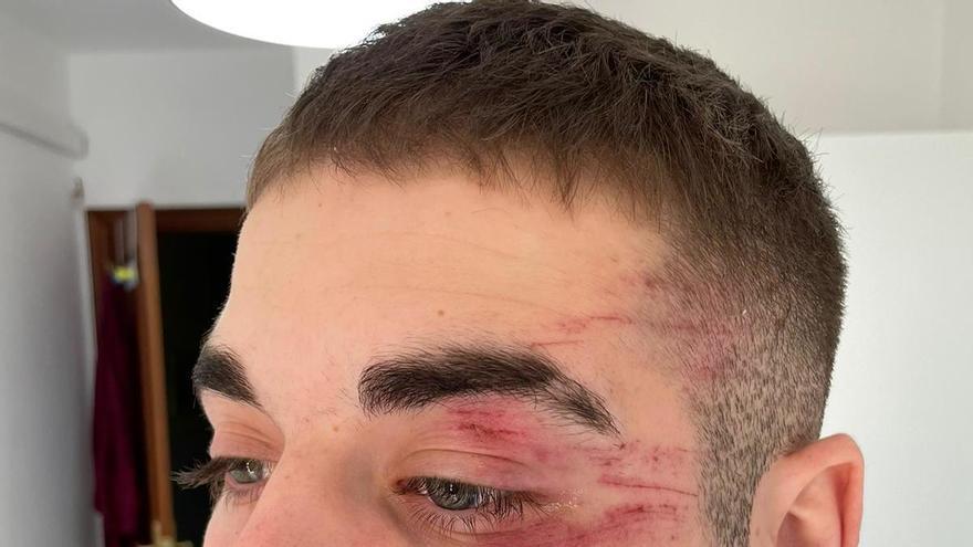 Brutal agresión en el partido Roldán-Hoya del Campo
