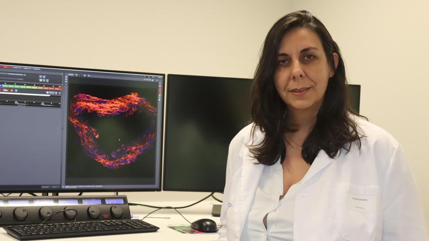 La Fundación Biomédica patenta un tratamiento para la Enfermedad de Fabry