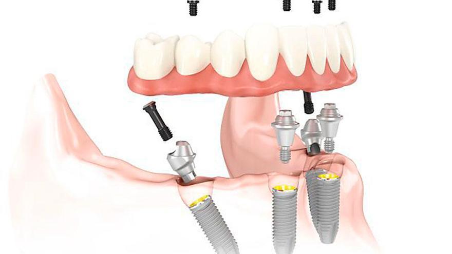 'All-on-4': Prótesis dental completa y fija desde el primer día en Quirónsalud Dental