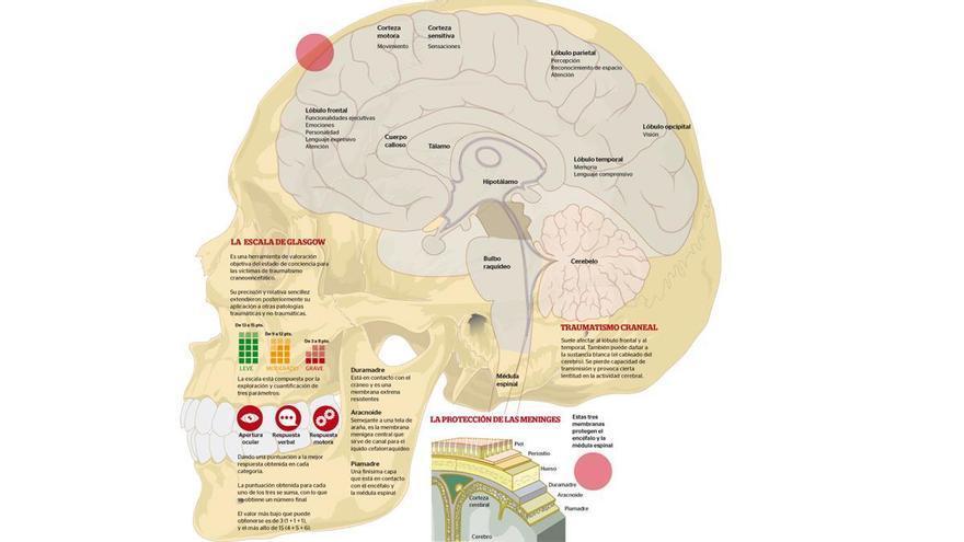 La causa más frecuente de daño cerebral