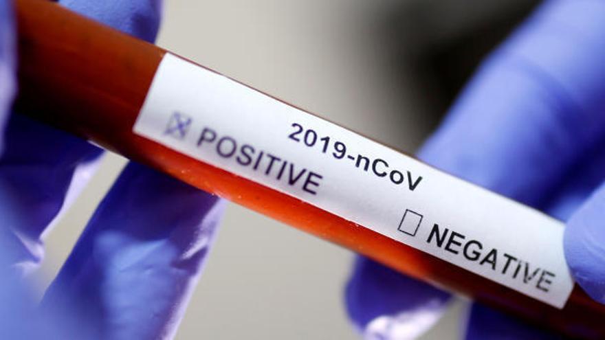 Balearen: Weitere Ansteckungen mit Coronavirus bestätigt
