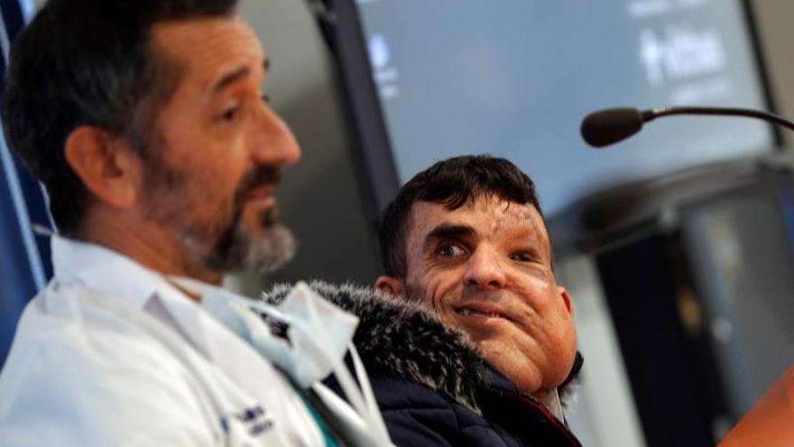 """El paciente al que Cavadas extirpó un tumor gigante de la cara: """"Siento que soy otra persona"""""""