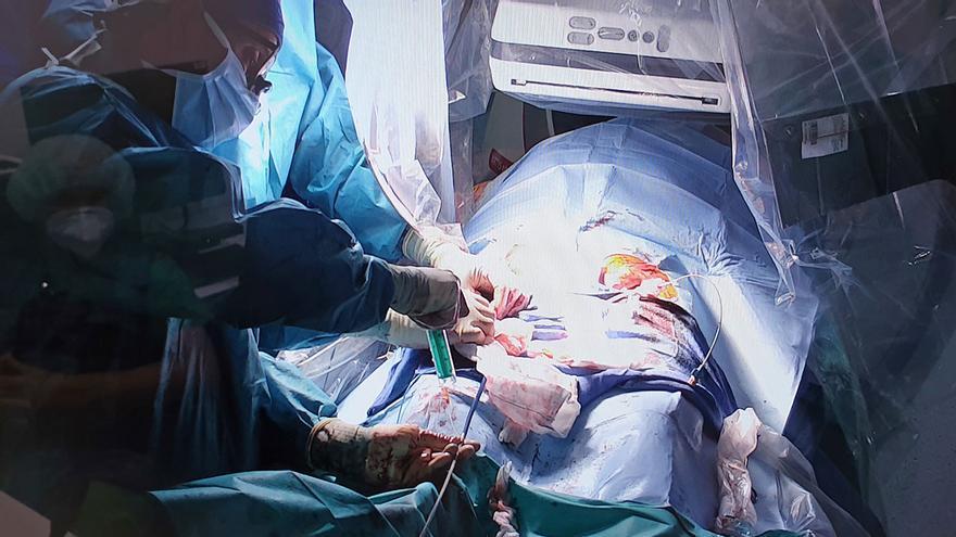 Operar el corazón sin dejar cicatriz