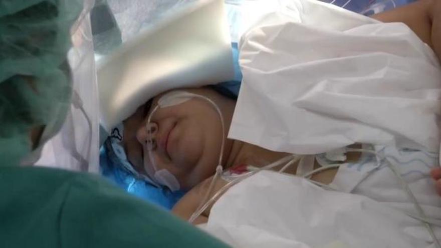 Operan despierta a una joven isleña para extirparle tejido cerebral epiléptico