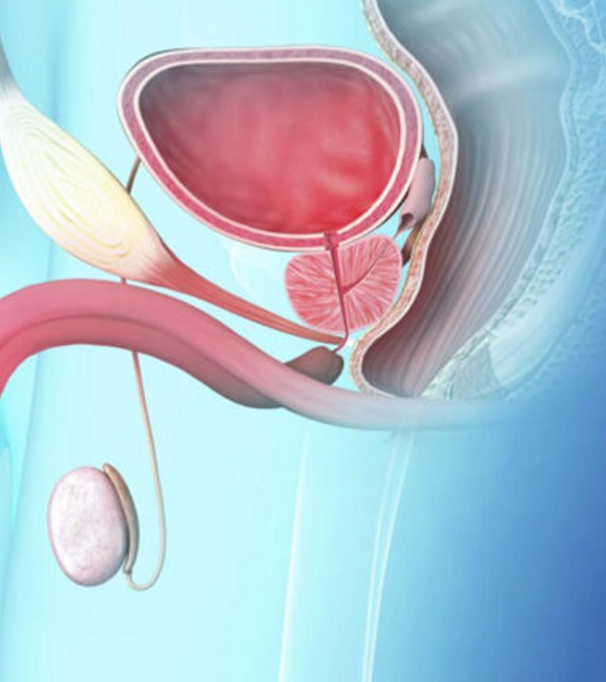 Día Mundial del Cáncer de Próstata: 35.000 casos diagnosticados cada año
