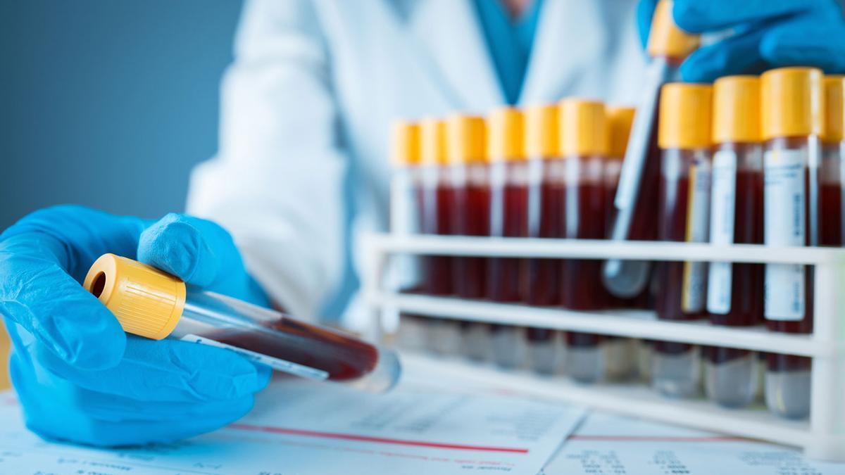 De las 3.000 personas con  hemofilia en España, un  10 % son valencianas.