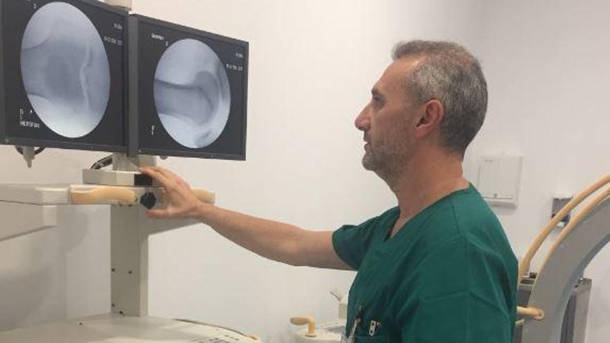 ¿Existe una revolución en el tratamiento de la artritis?