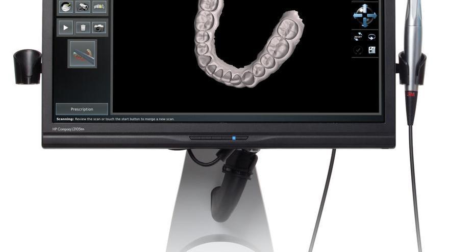 El escáner intraoral, una imagen de la boca en 3D, permite decir adiós a los moldes con pasta