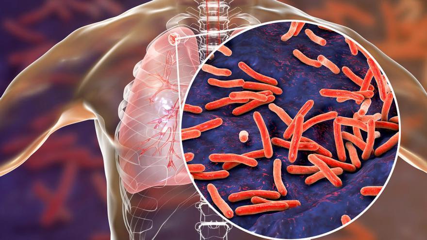 La vacuna española contra la tuberculosis sigue avanzando