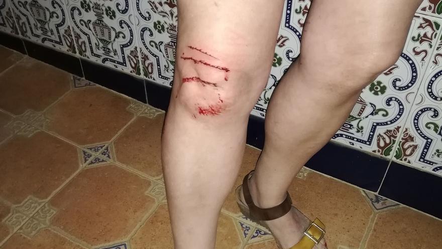 Herida al ser atacada por un gato en Los Alcázares