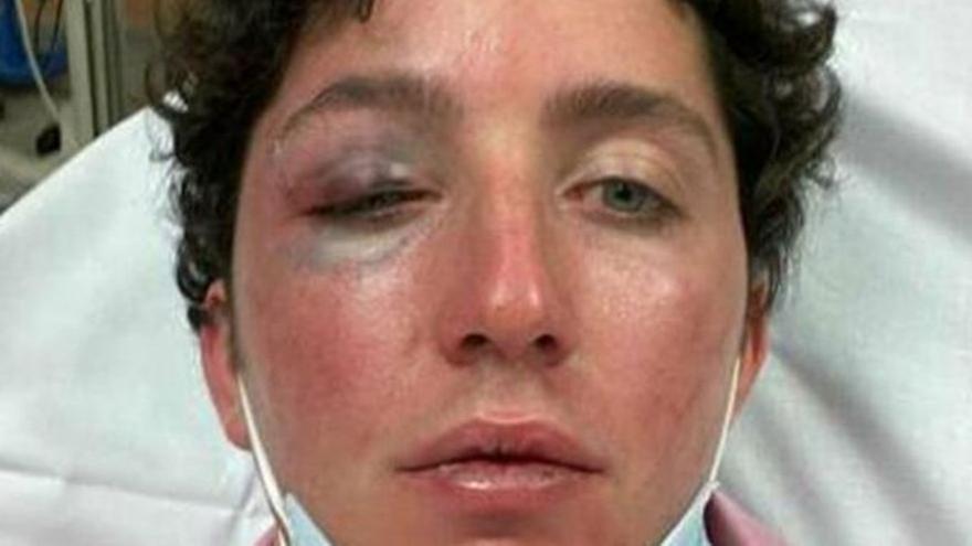 El 'Pequeño Nicolás', a l'hospital després de patir una agressió a Marbella