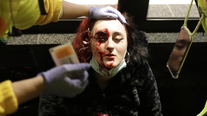 Imputados dos mossos por la pérdida de un ojo por un proyectil de 'foam'