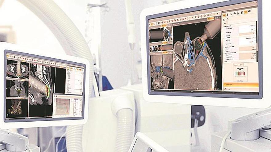 Una radioterapia de primera en el Provincial de Castellón
