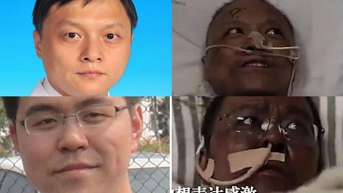 Los médicos Yi Fan (arriba) y Hu Weifeng, antes y después de someterse al tratamiento contra el coronavirus.