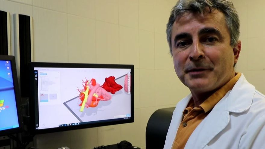 AIJU inicia la réplica de órganos con precisión ultrarrealista gracias a una impresora 3D única en Europa