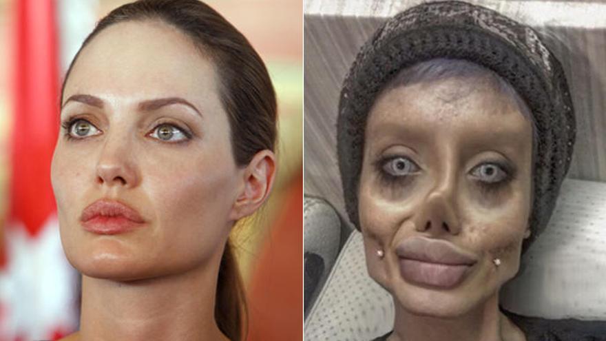 Es fa 50 operacions per assemblar-se a Angelina Jolie