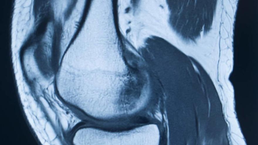 La cirugía que puede evitar el reemplazo total de rodilla