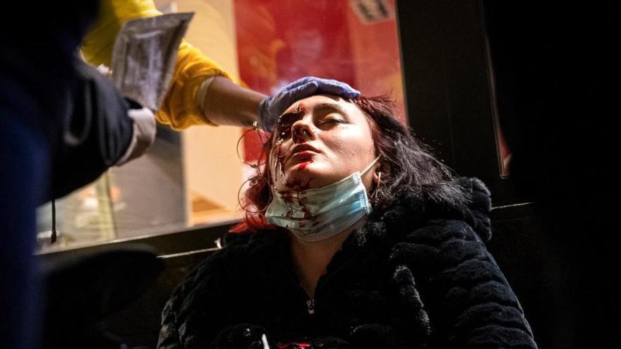 La jove que va perdre un ull en les protestes pro Hasél i Irídia es querellen contra el mosso que hauria disparat