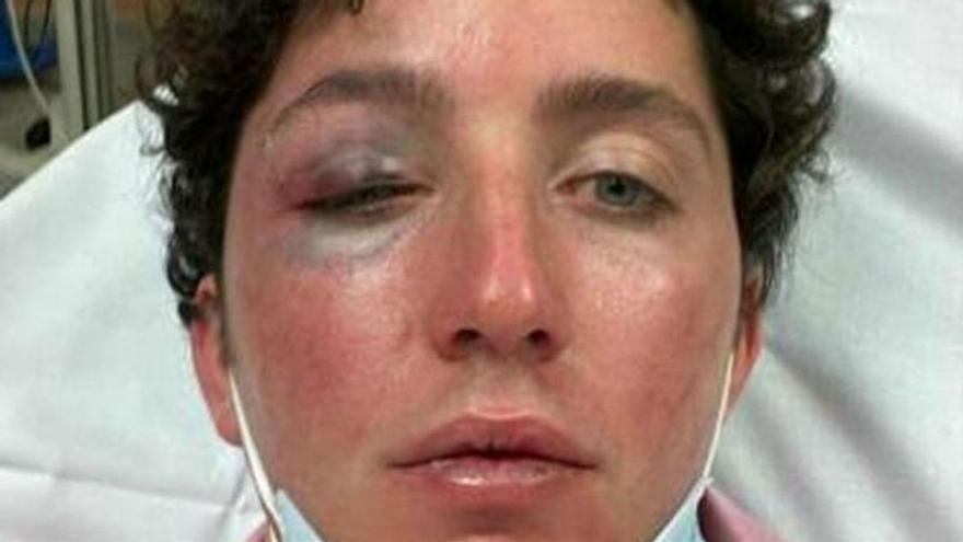 El 'Petit Nicolás', a l'hospital després de patir una agressió a Marbella