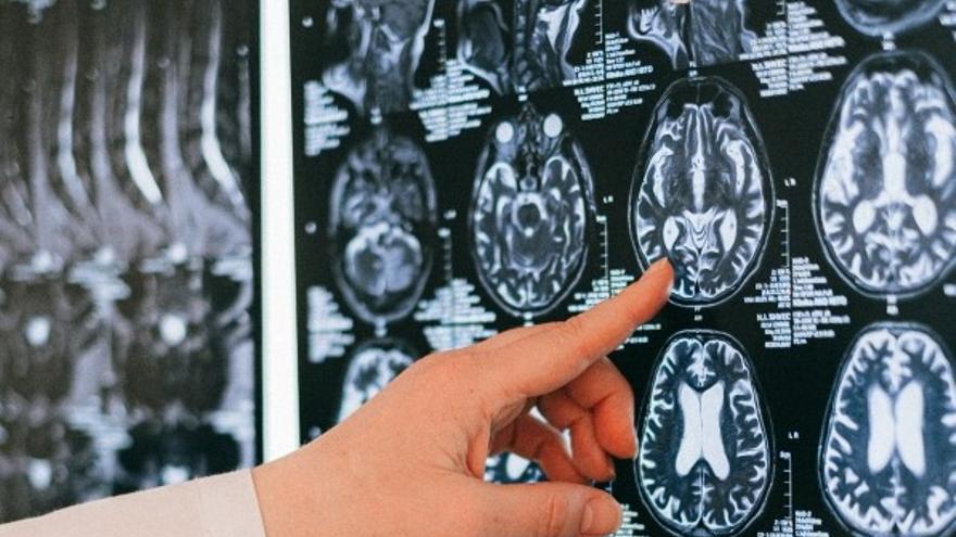 Combinan imágenes en 3D e inteligencia artificial para diagnosticar el grado de afección del párkinson