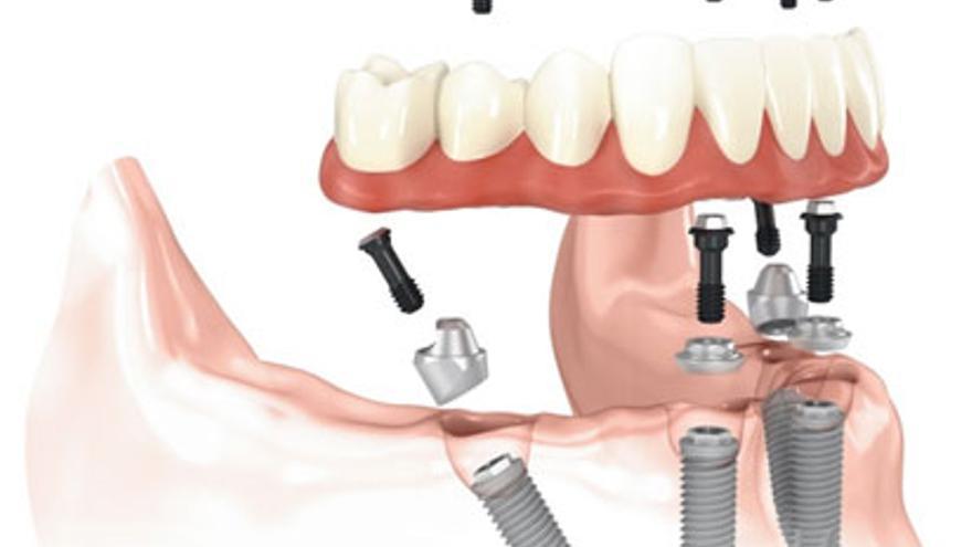Lo último en implantes dentales fijos en Vigo. Todo lo que necesitas saber