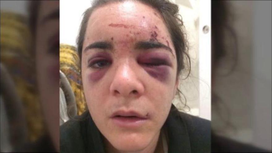 Violan y agreden a una joven estadounidense en Madrid