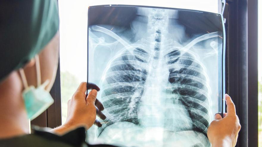 """El cambio que hace """"curable"""" un cáncer de pulmón mayoritariamente letal"""