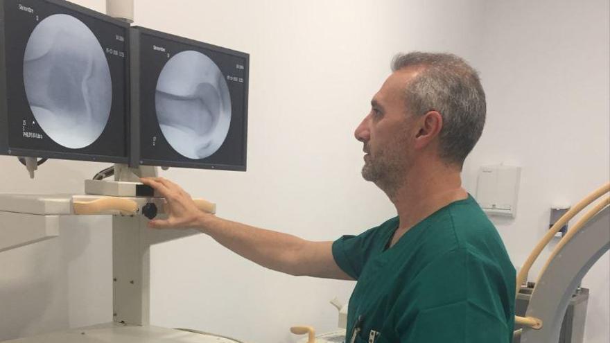 Medicina Regenerativa para combatir la artrosis