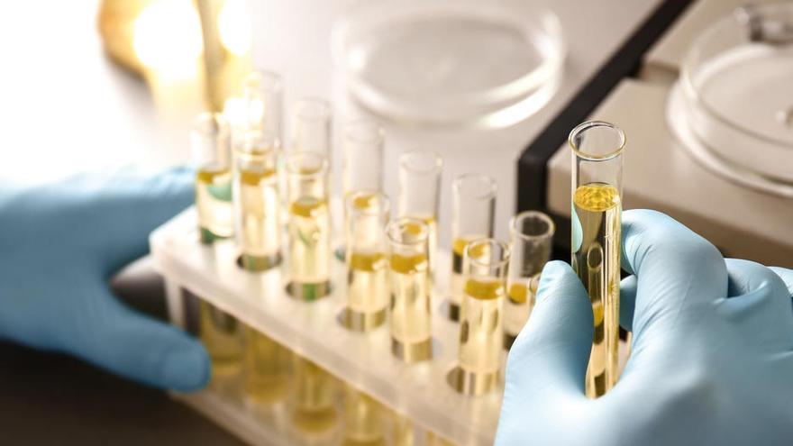 Una prueba de orina logra adelantar el diagnóstico del cáncer de próstata agresivo