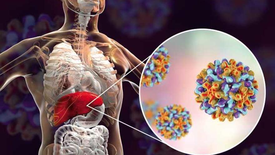 Hepatitis: claves para entender la enfermedad