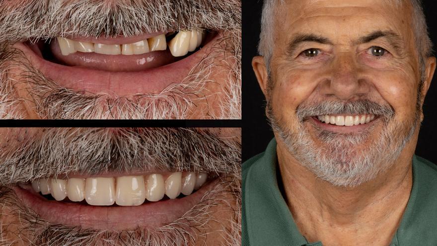 """""""Gracias a los implantes dentales cigomáticos ahora mastico perfectamente"""""""