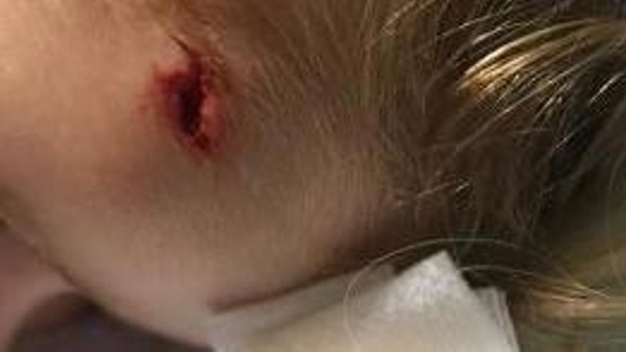 Una nena amb un fort cop al cap espera sis hores a ser atesa a Eivissa