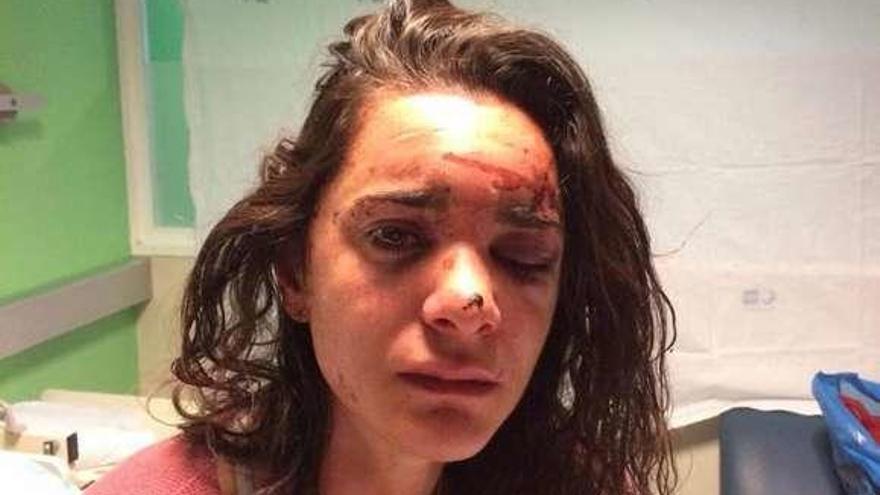 Detenido un joven acusado de violar y agredir a una estadounidense en Madrid