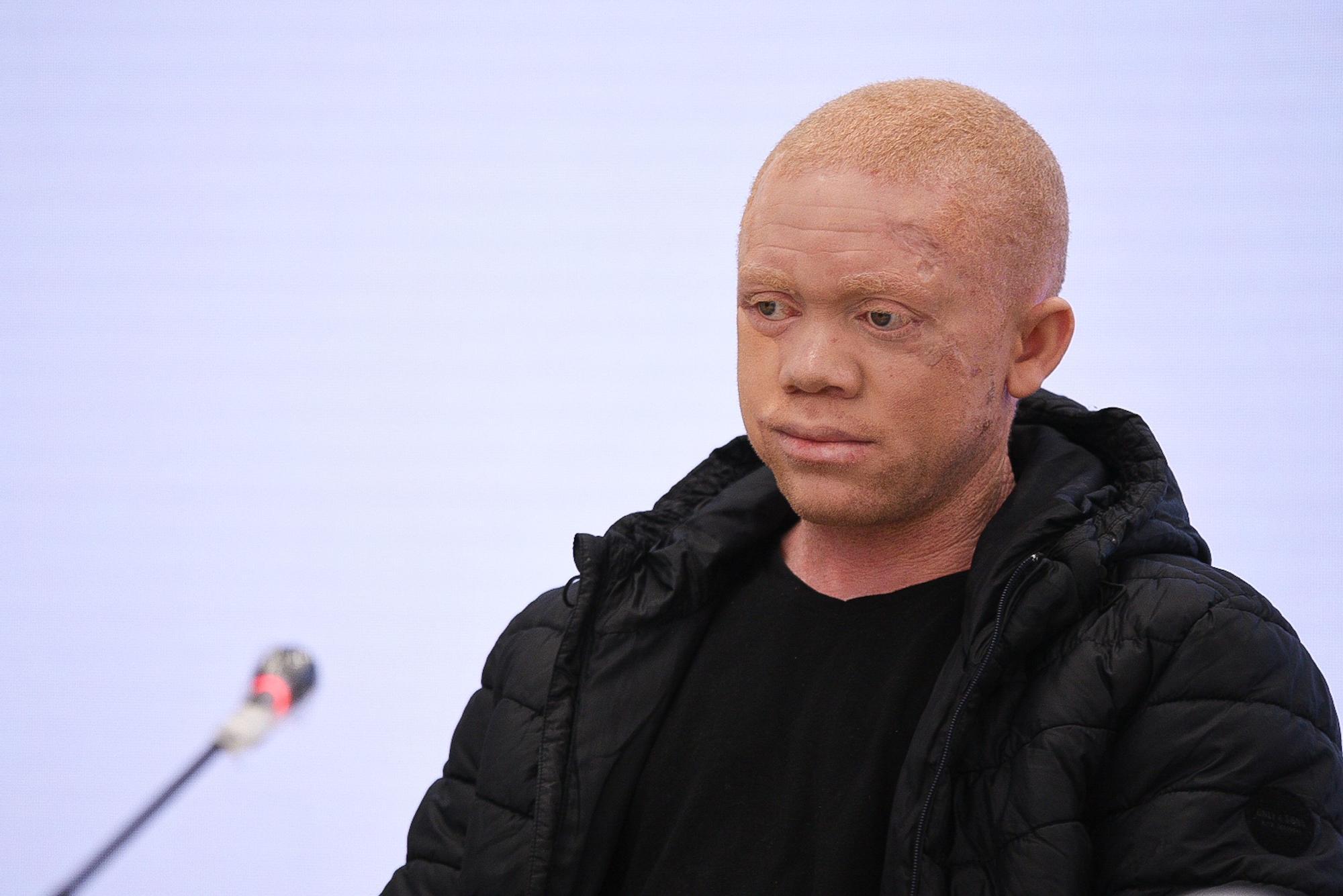 Cavadas reconstruye la cara a un paciente albino