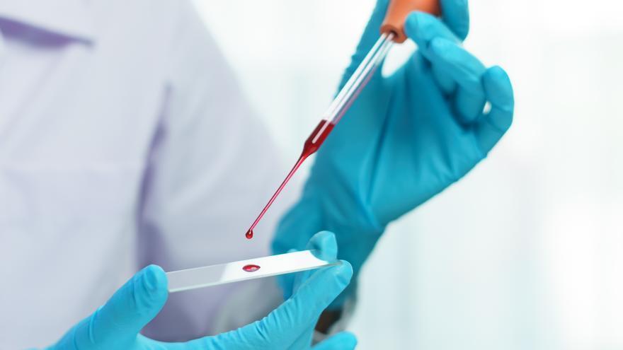 """El coronavirus se siente """"particularmente atraído"""" por el grupo sanguíneo A"""