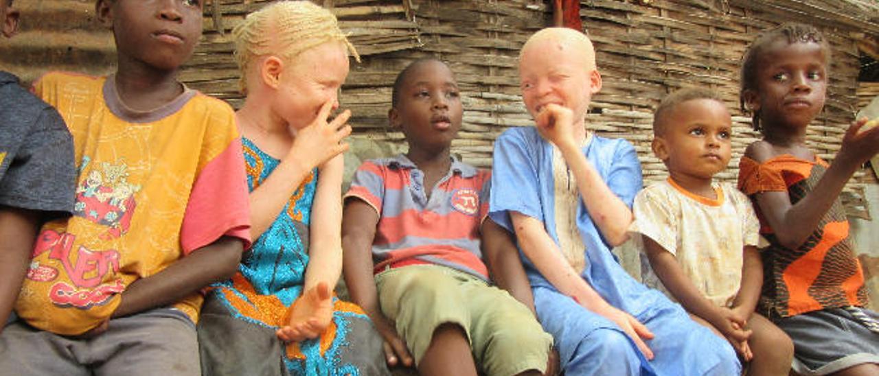 Los hermanos albinos Aisha y Lucmani bromean rodeados de sus primos y amigos en Bissau.