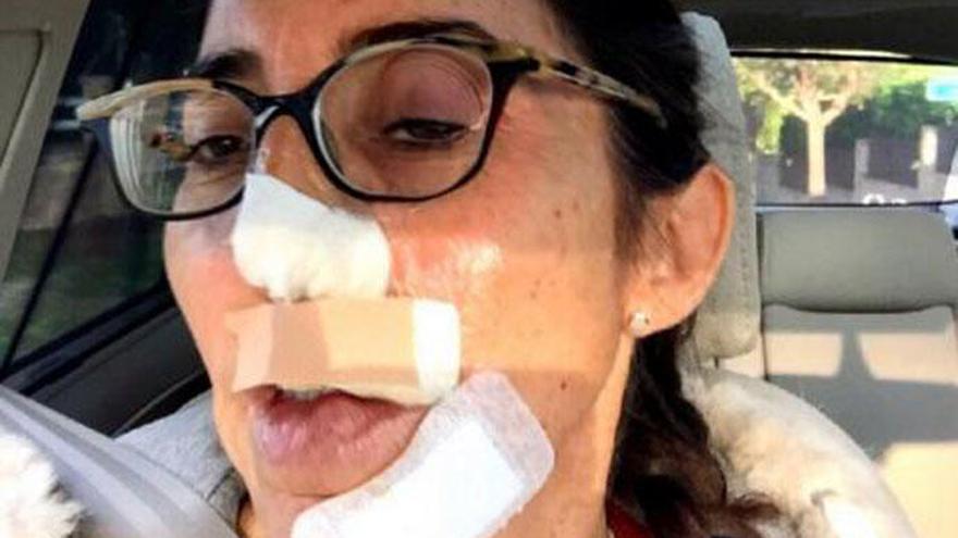 """La desafortunada inocentada de Paz Padilla: """"Me he quemado con sosa cáustica"""""""
