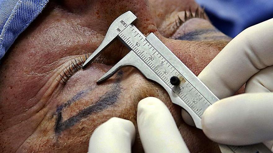 La pandemia eleva las cirugías de párpados caídos y de zonas ocultas por la mascarilla