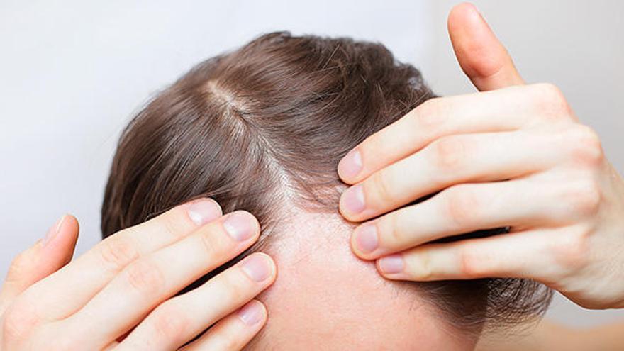 Alopecia androgenética masculina: Tratamientos para frenar la caída del cabello