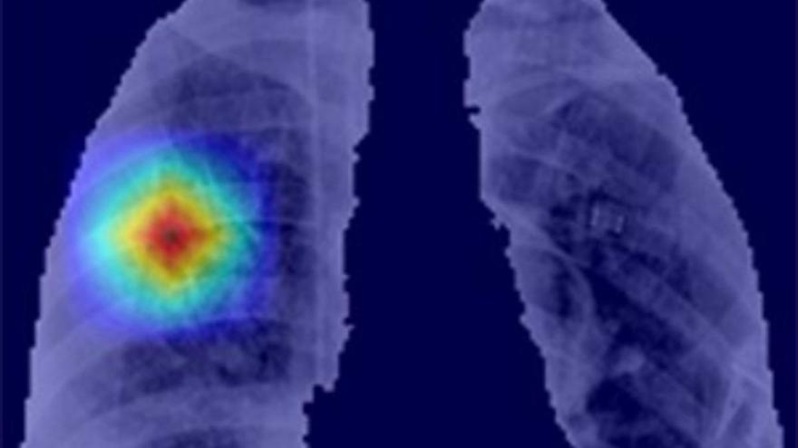 Lanzan 'CoronavIAruX', una herramienta de diagnóstico del Covid-19 basada en inteligencia artificial