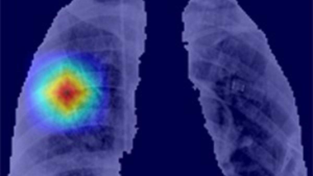 Resultados de segmentación automática de los pulmones