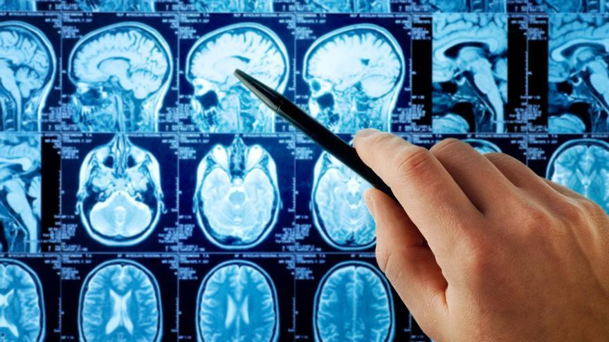 Un biobanco con muestras vivas para investigar la metástasis cerebral