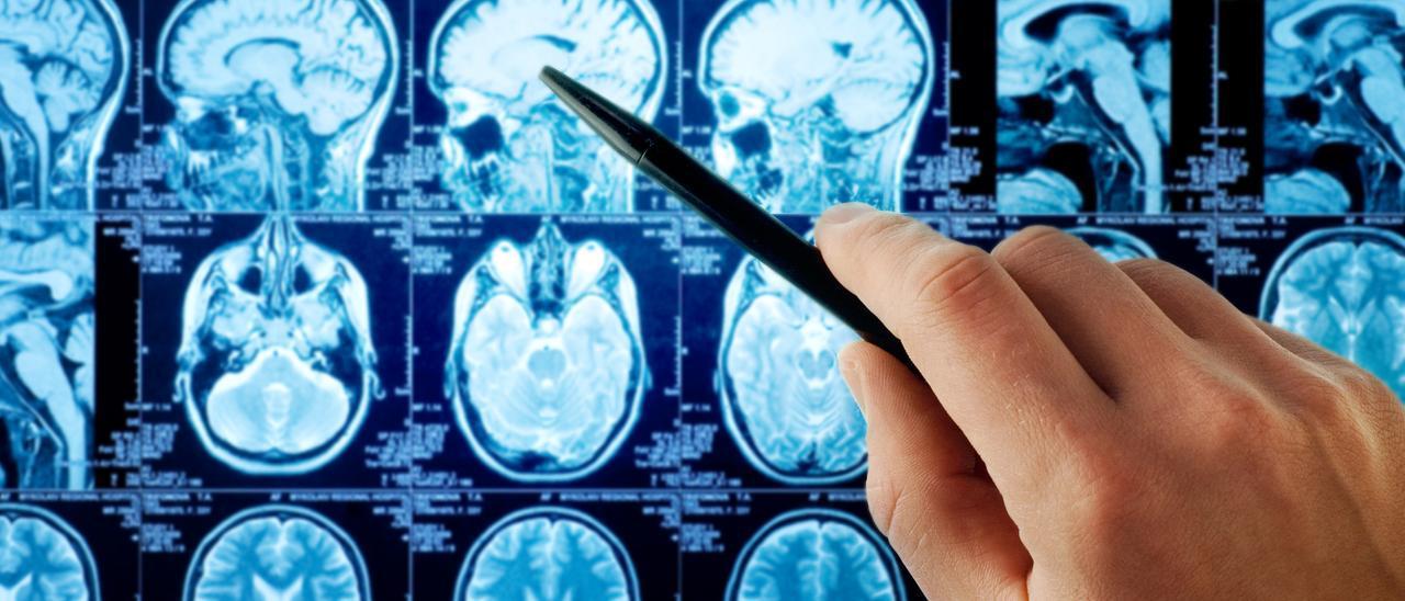 Imagen de una resonancia magnética que muestra un cerebro