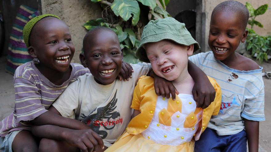 Guinea se convierte en el primer país en aprobar una ley para proteger a los albinos