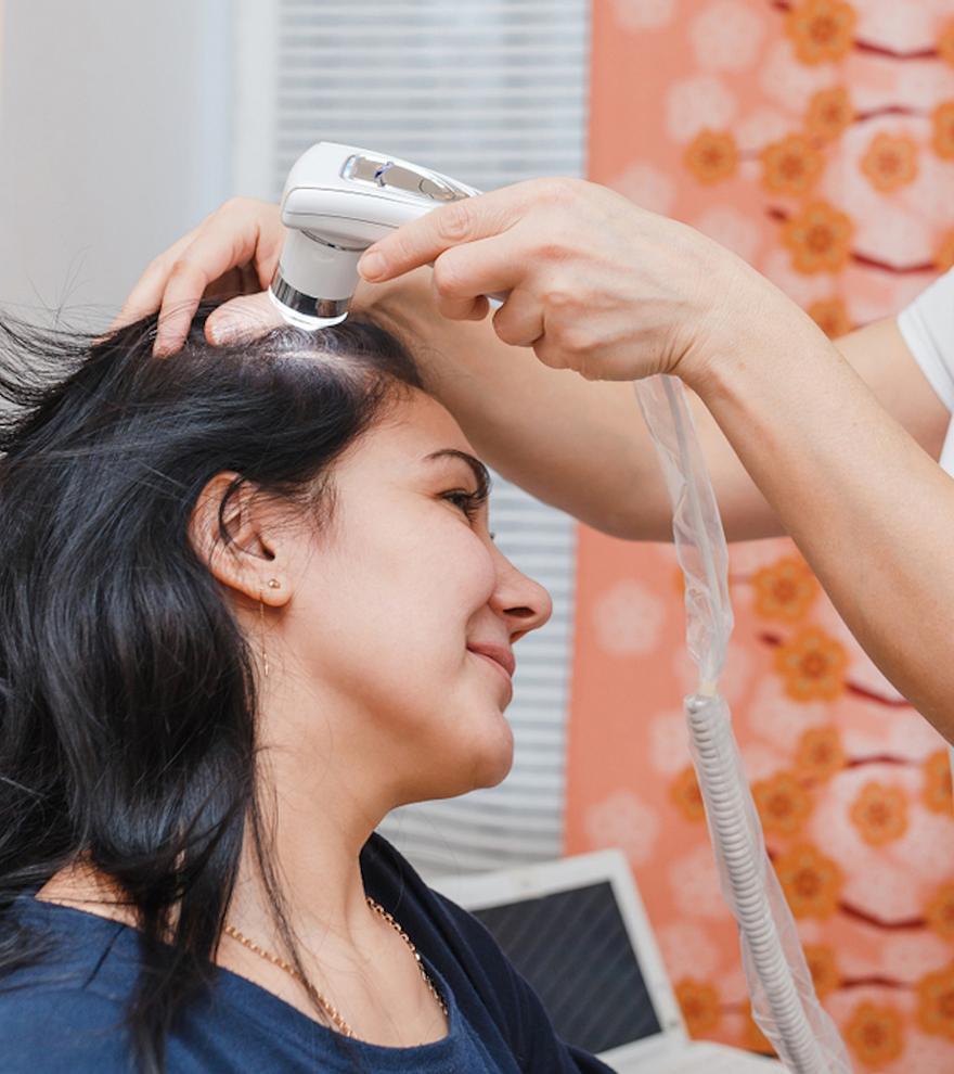 Trasplantes, tratamientos con PRP, o mesoterapia nutritiva, entre las opciones  frente a la alopecia femenina.