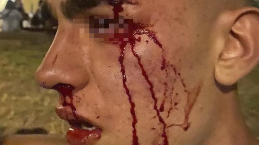 Un joven de 17 años denuncia una agresión homofoba en València