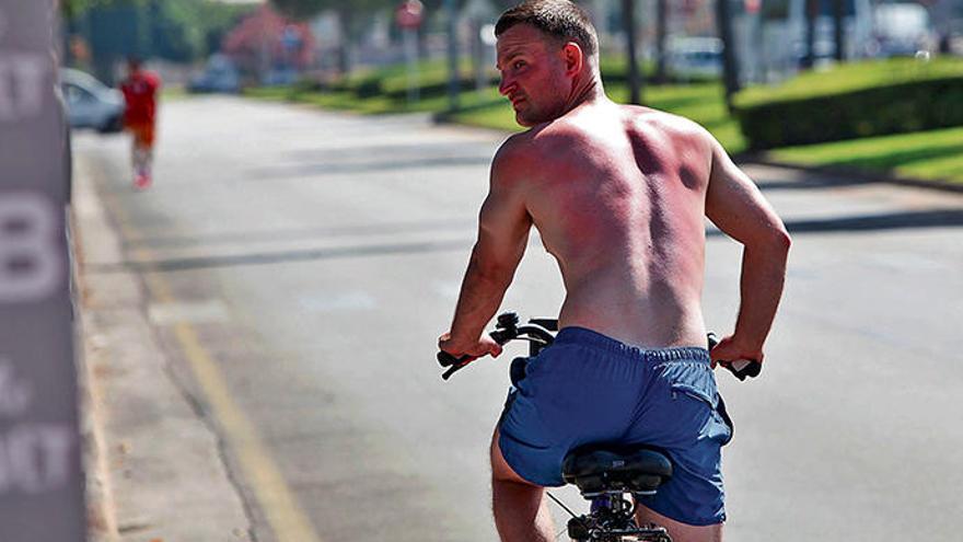 Sonnenbrand: eine unterschätze Gefahr auf Mallorca