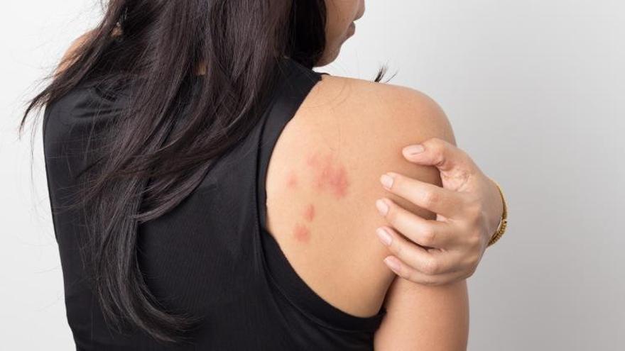 Las huellas del covid-19 en la piel