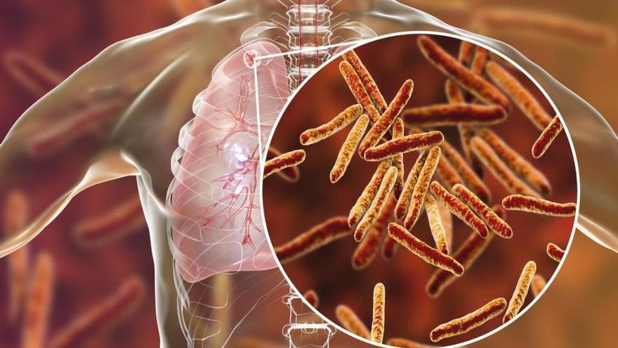Españoles lideran un gran proyecto internacional contra la tuberculosis